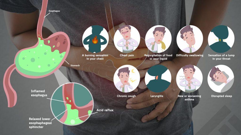 Symptoms of GERD and acid reflux