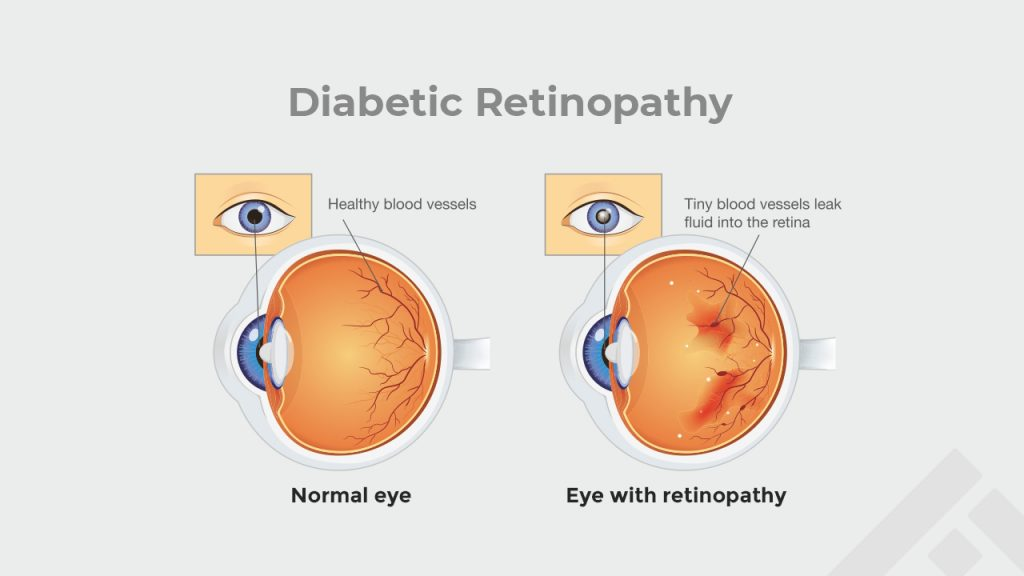 effect of diabetic retinopathy