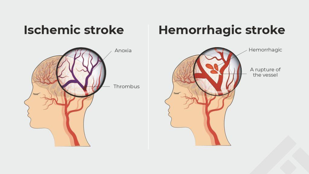 types of stroke