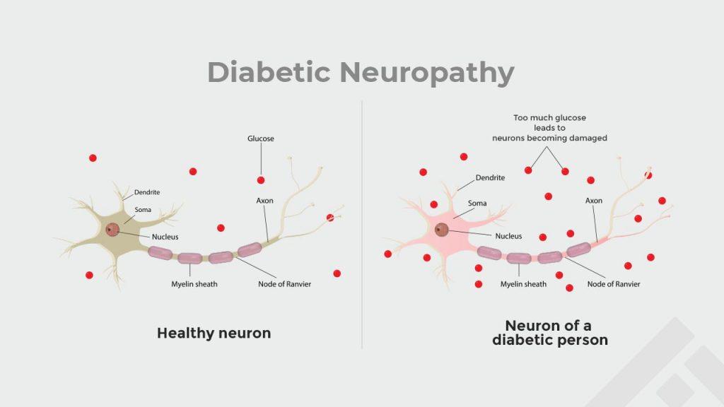 effect of diabetic neuropathy
