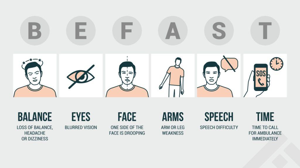 symptoms of stroke - BEFAST