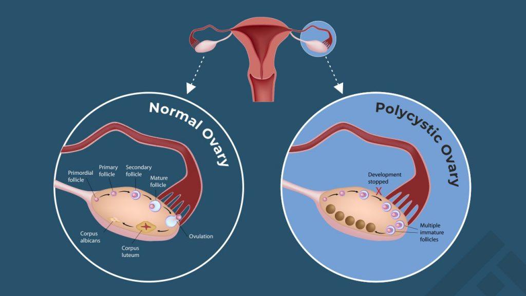 normal ovary vs PCOS ovary