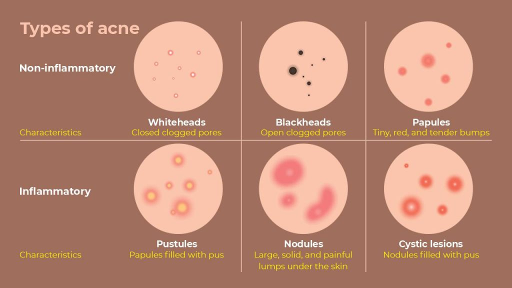 types of acne and their characteristics