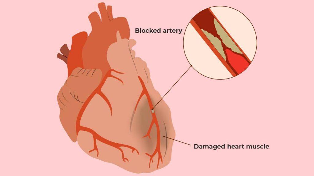 Coronary heart diseases (CHD) or ischemic heart disease (IHD)