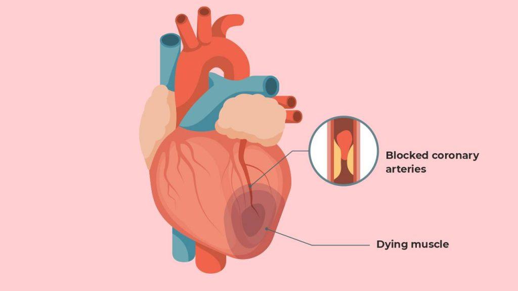Myocardial infarction (heart attack)