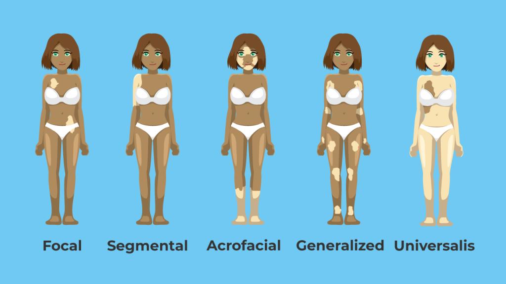 Types of vitiligo