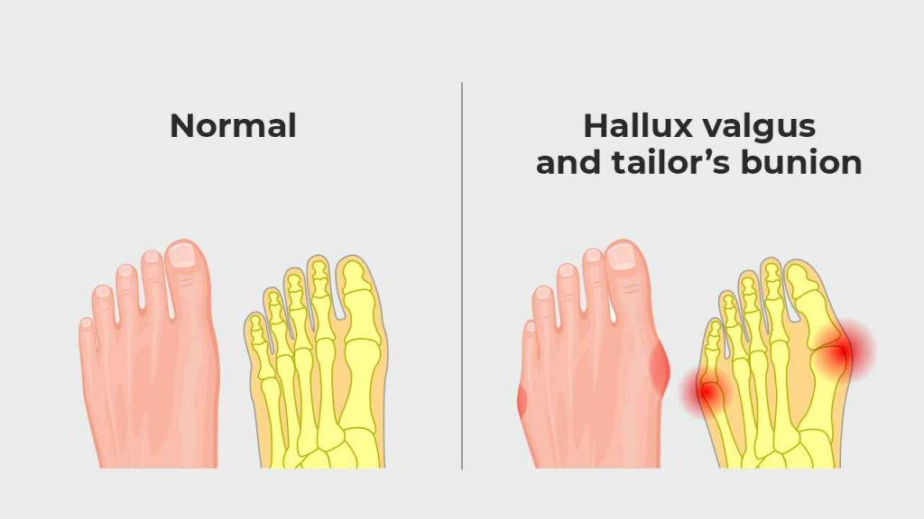 Hallux valgus and bunionette or tailor's bunion